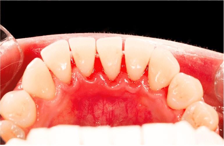 Рейтинг зубных паст от зубного камня
