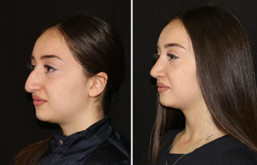Что следует знать о ринопластике носа?