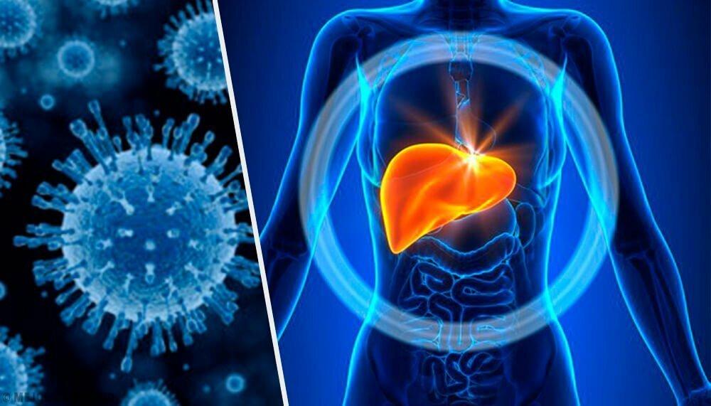 Гепатит: симптомы и методы лечения